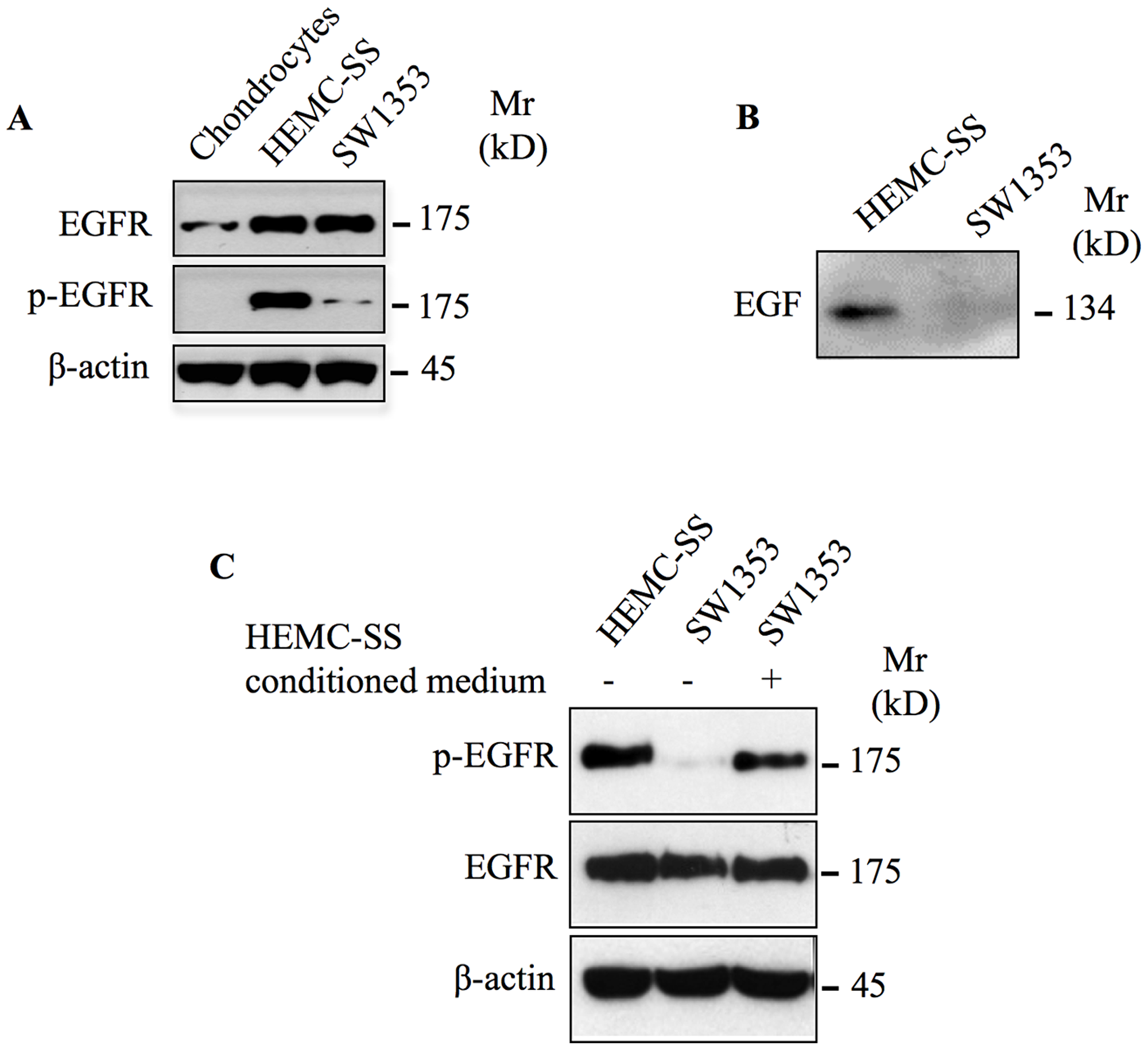 EGFR is overexpressed and constitutively activated in chondrosarcoma cells.
