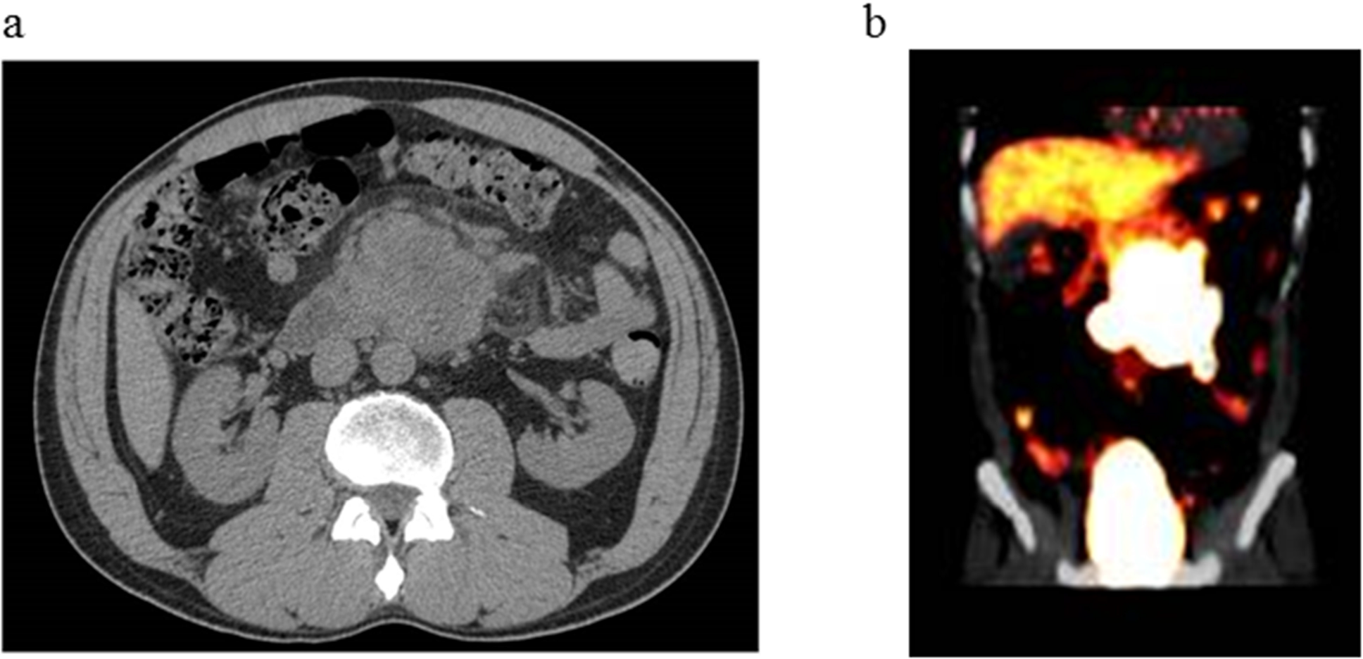 Radiological images of abdominal tumor.
