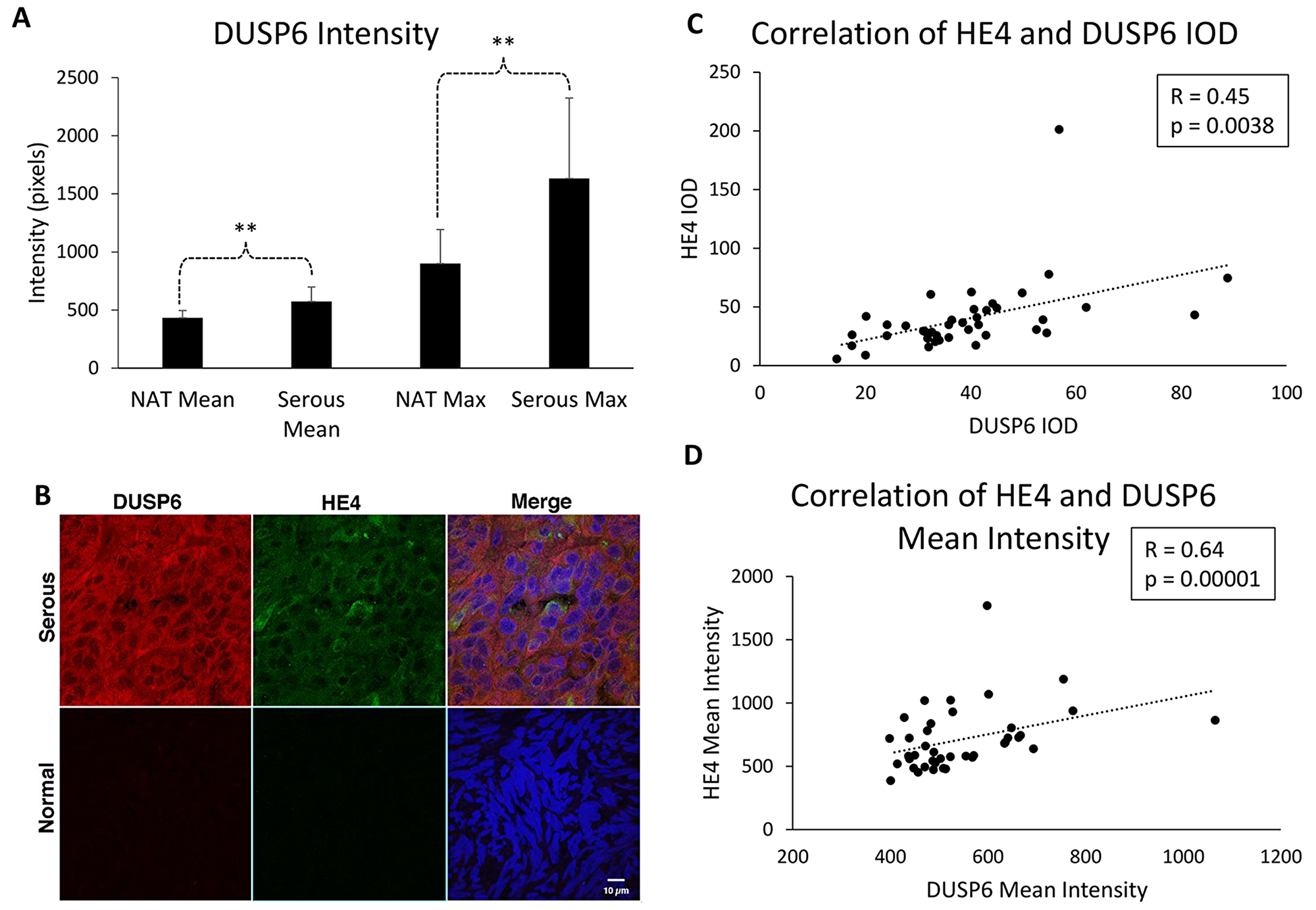 DUSP6 levels are higher in EOC tissue than normal adjacent tissue, and correlate with HE4 tissue levels