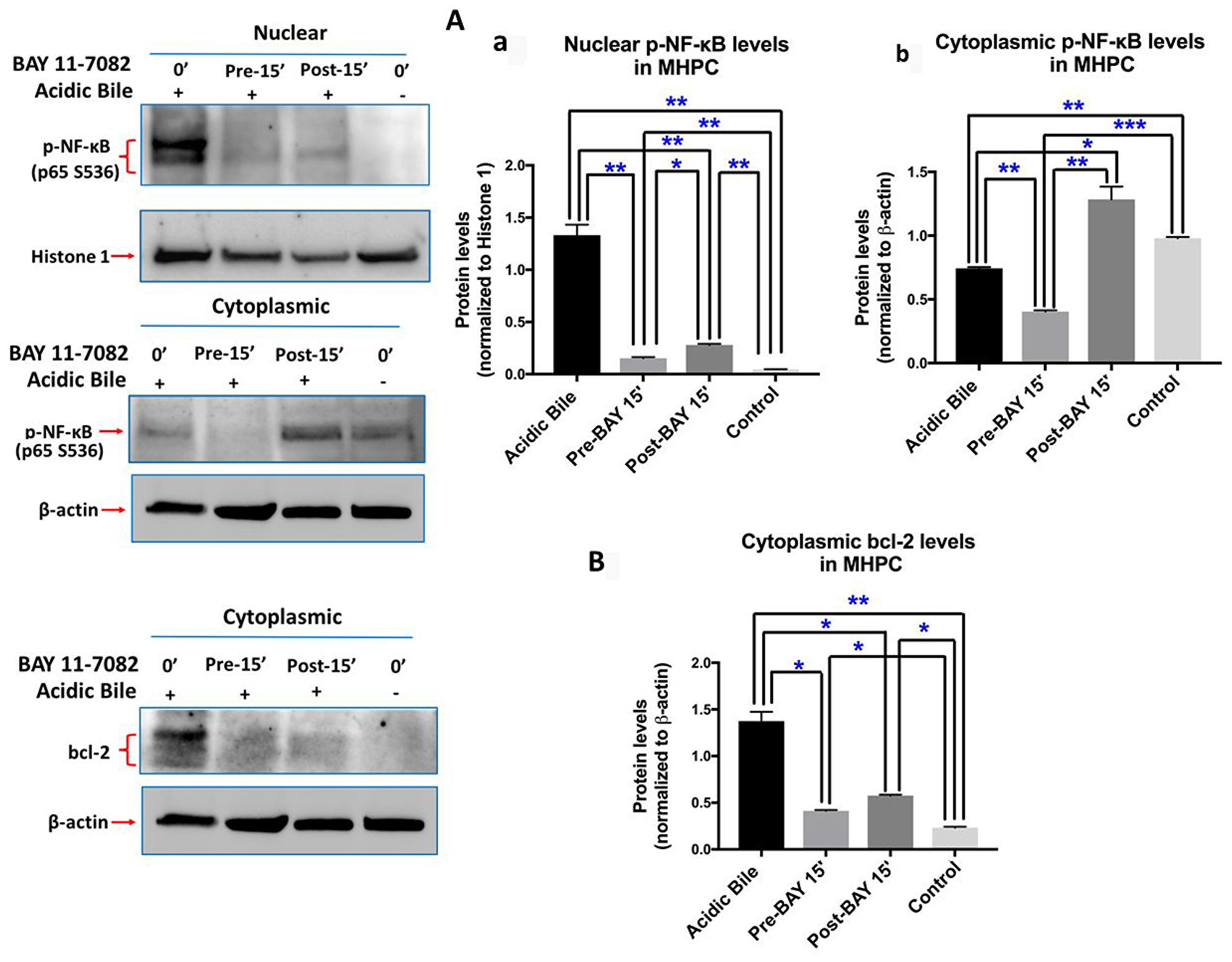 Pre- or post-application of ΒΑΥ 11-7082 inhibits acidic bile-induced NF-κB activation and bcl-2 overexpression in MHPC.