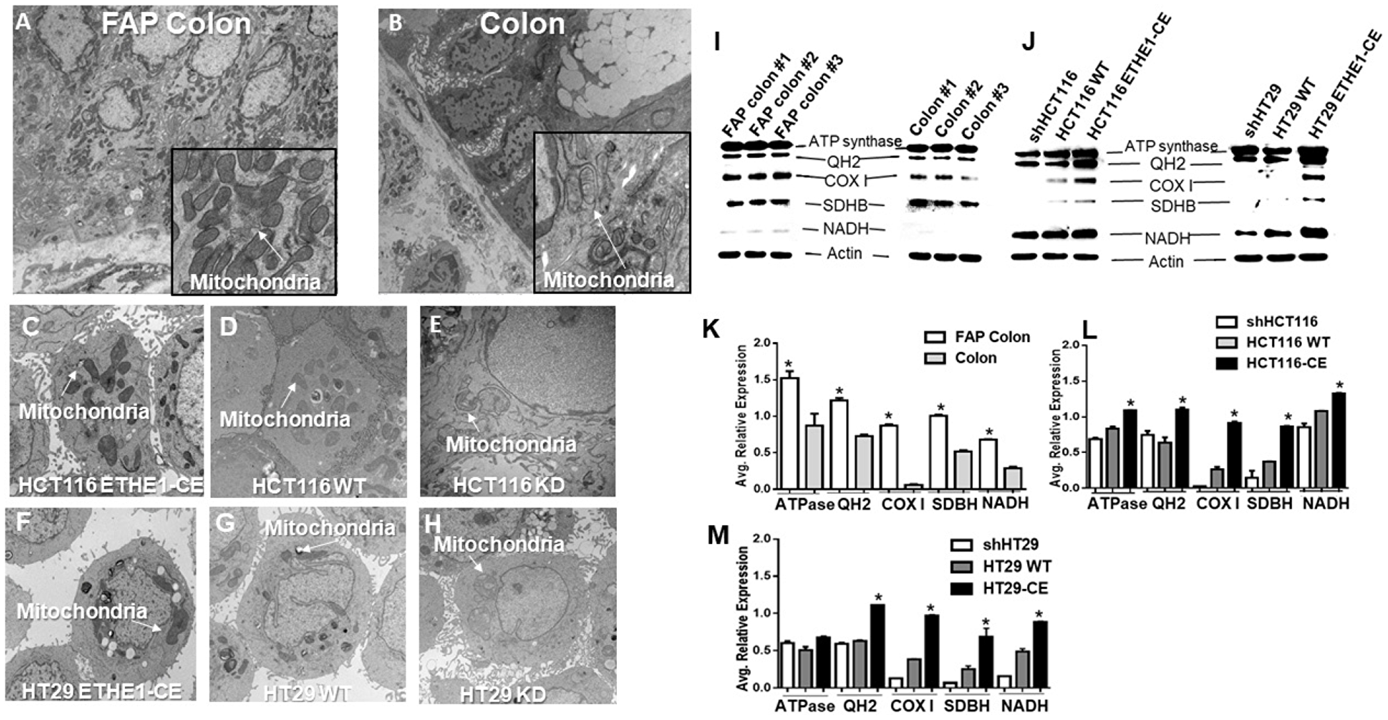 ETHE1 promotes expression of CRC mitochondrial oxidative phosphorylation proteins.
