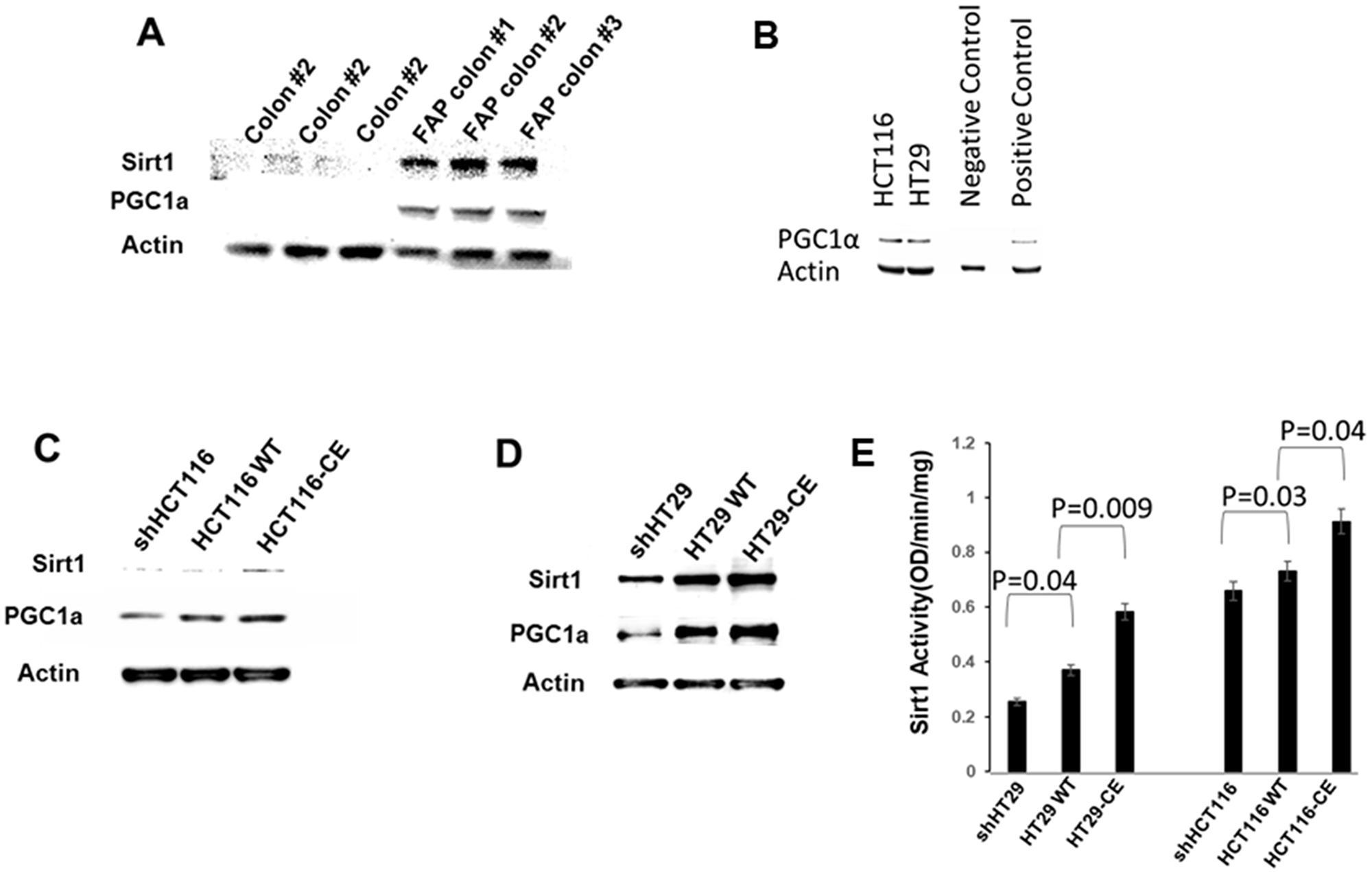 ETHE1 regulates the Sirt1/PGC1α axis.