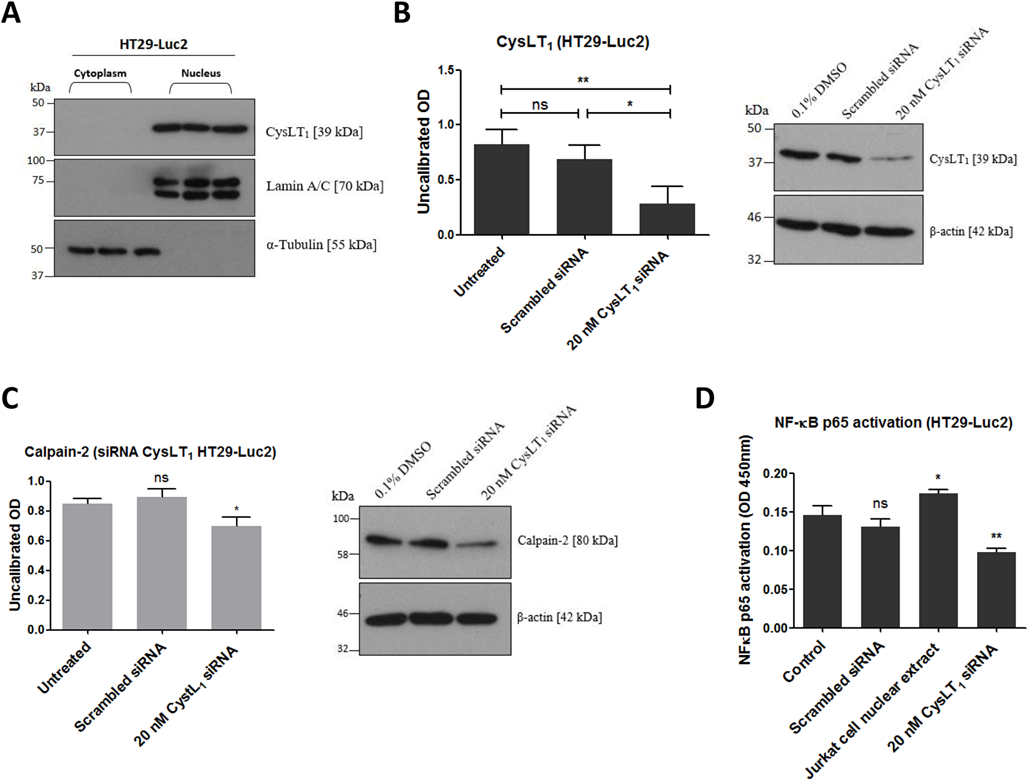 Effects of CysLT1 gene silencing in HT29-Luc2 cells.