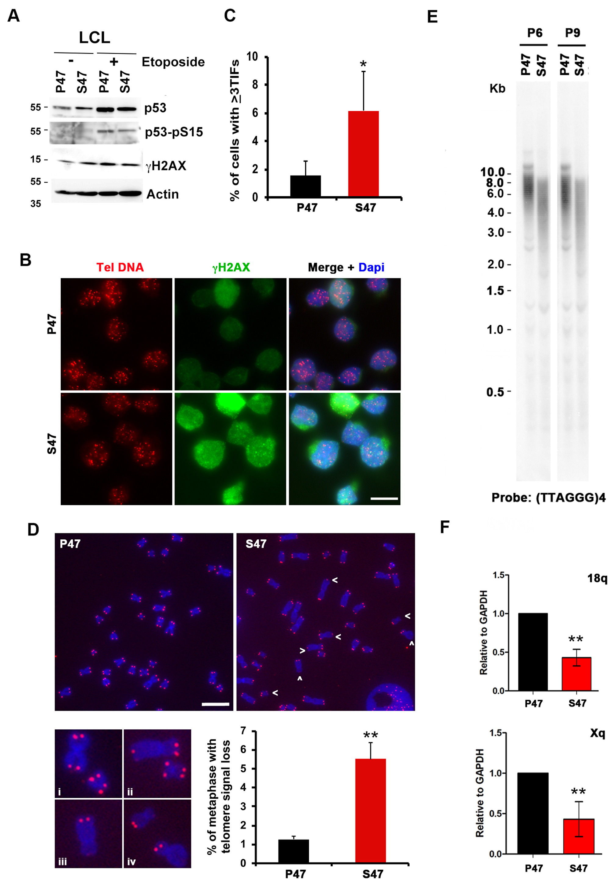 Telomere DNA damage foci and decreased TERRA in human LCLs carrying homozygous p53 S47.