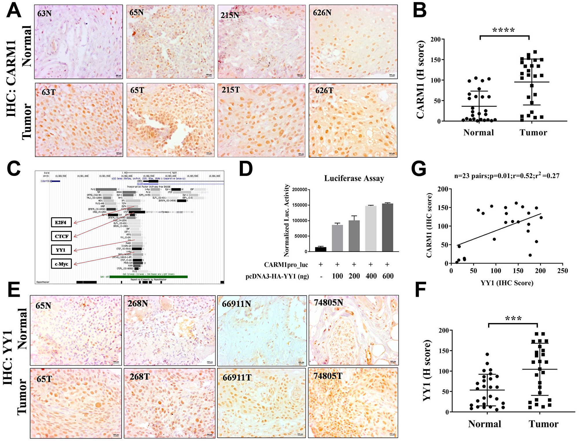 CARM1 and YY1 are overexpressed in oral cancer patient tumor tissue.