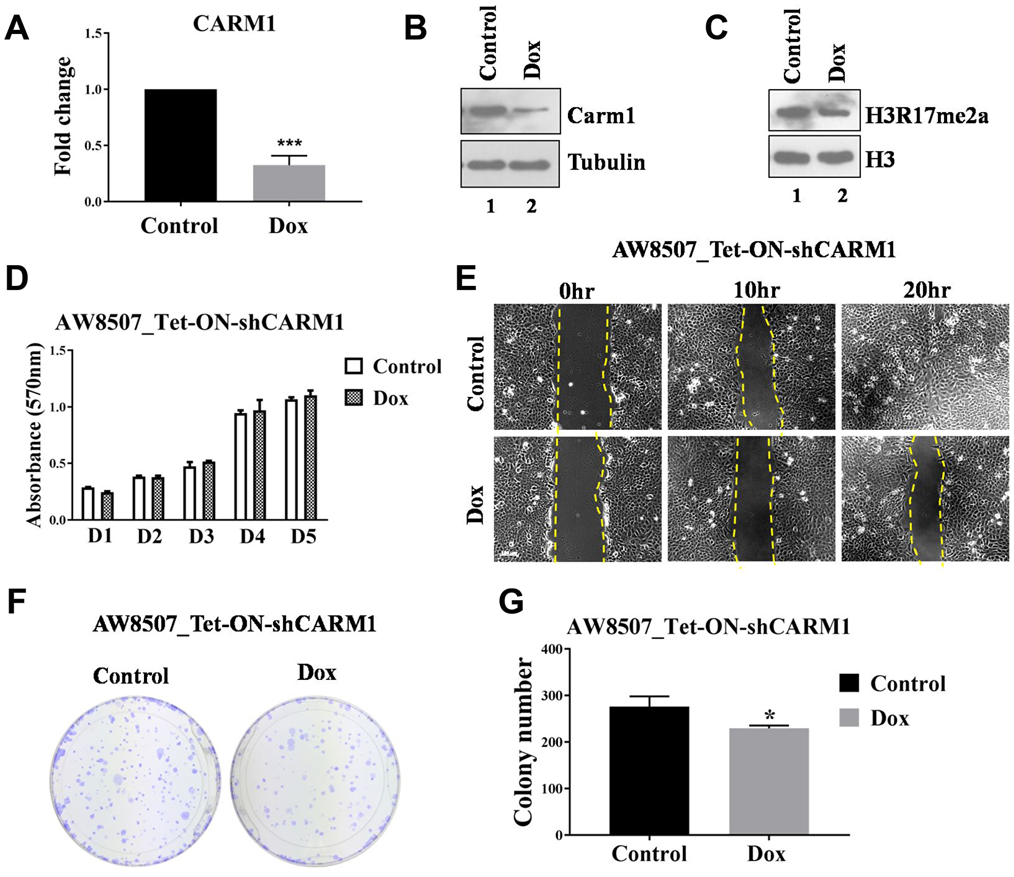 Elucidation of oncogenic role of CARM1 in oral cancer cell line.