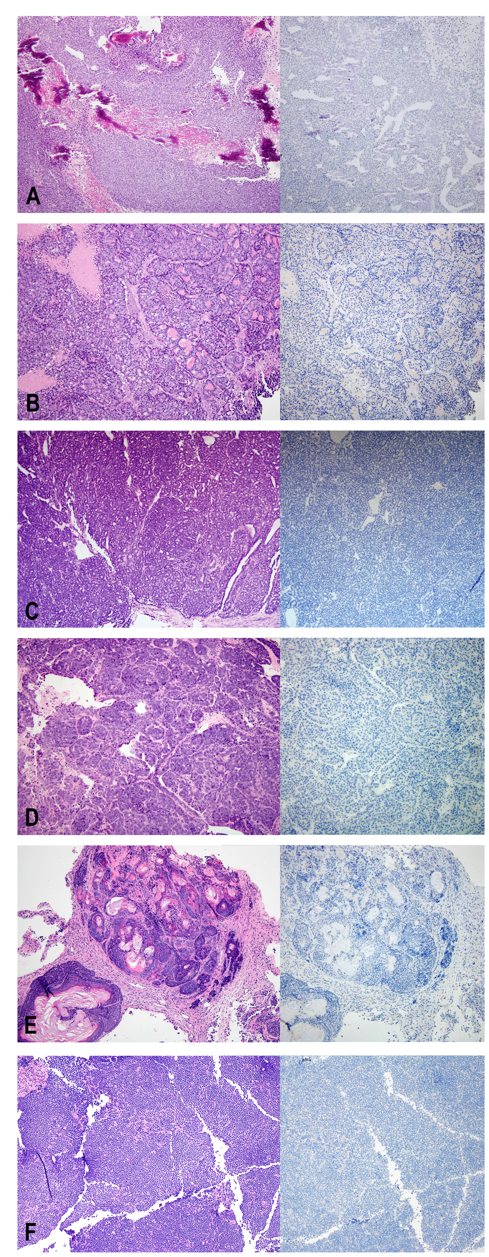 H&E (left) and Ki67 (right) staining of non-human tumors identified at the injection site.