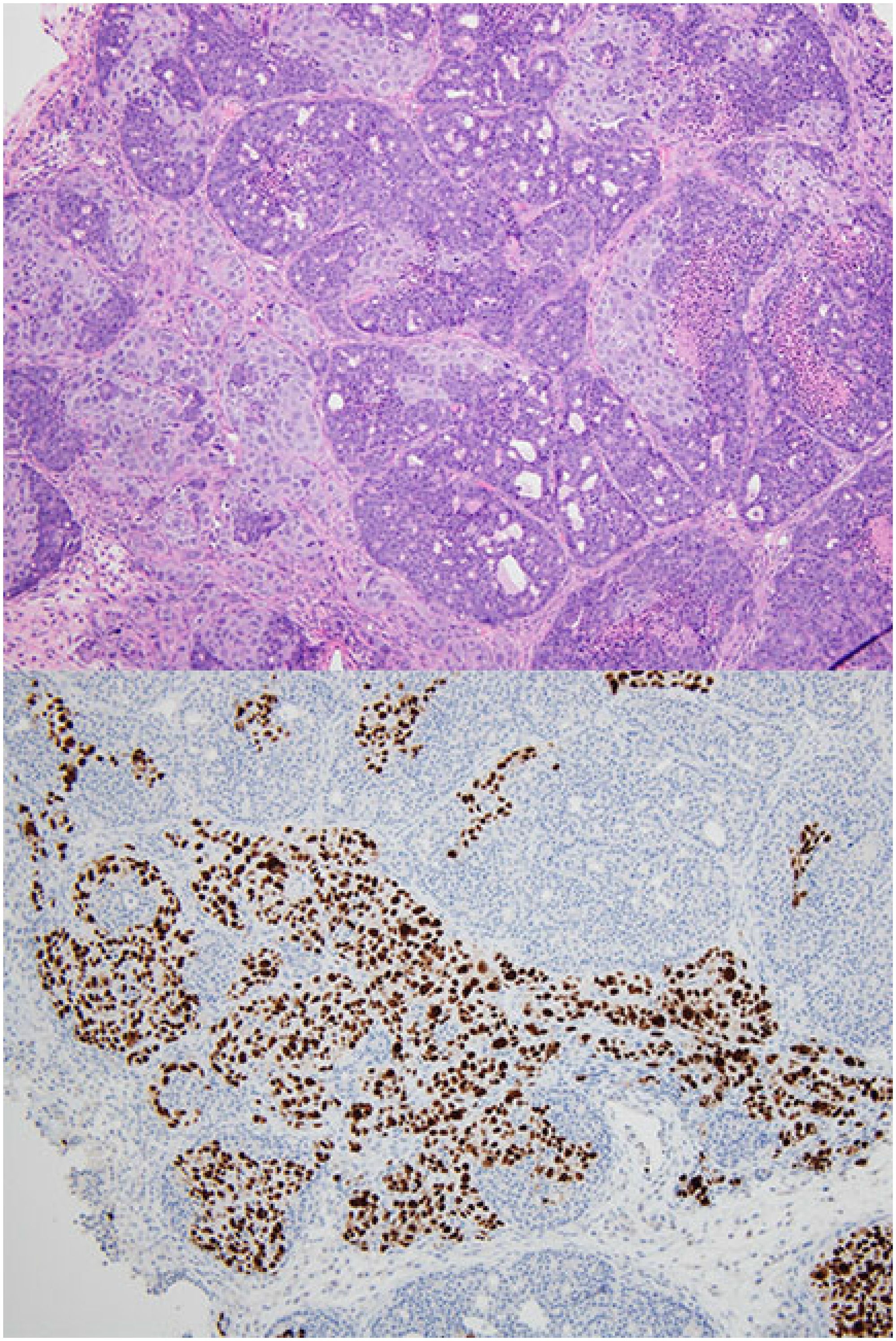 Collision tumor of mouse mammary tumor and patient-derived xenograft.
