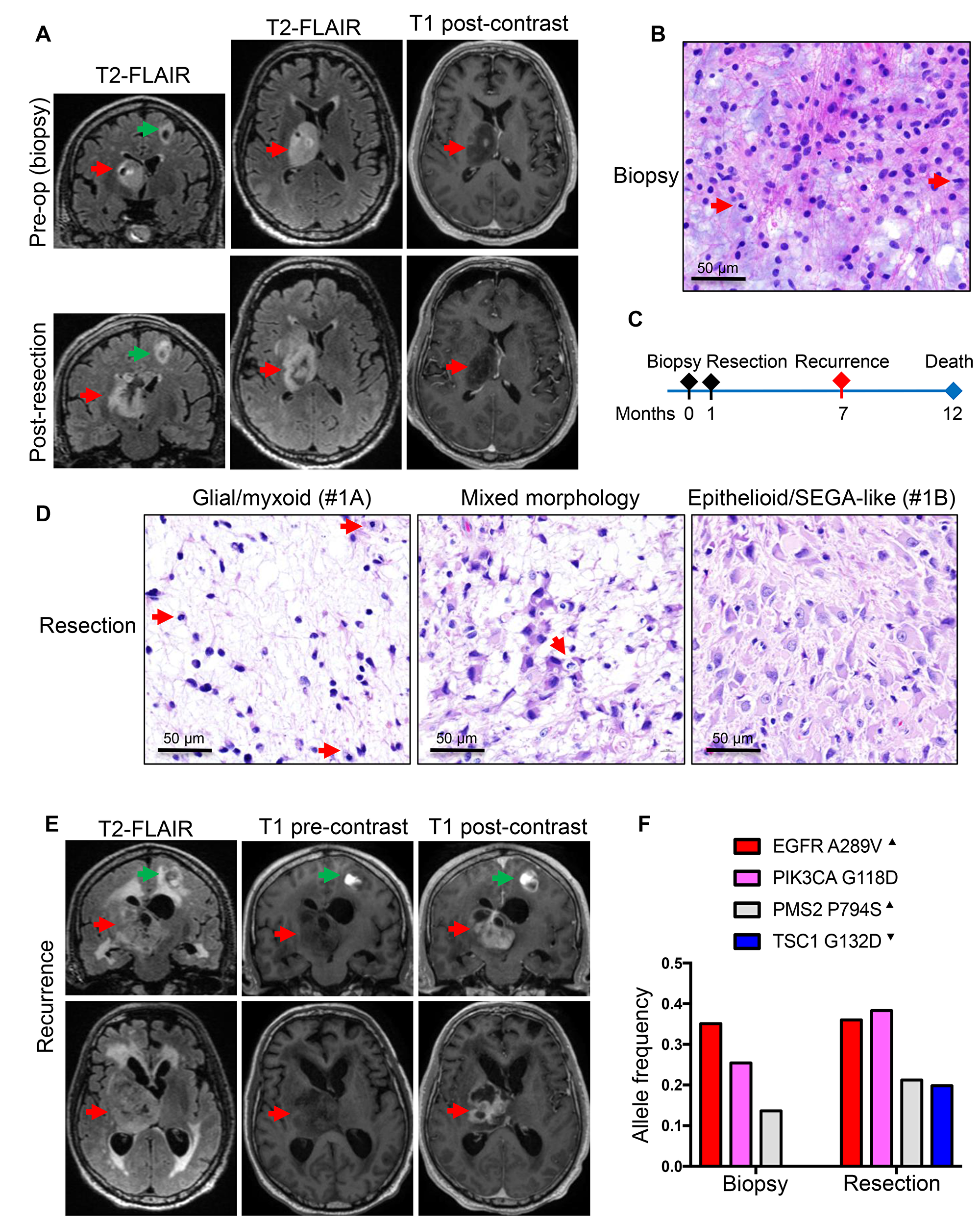 Patient 1: Aggressive thalamic anaplastic astrocytoma with TSC1 mutation and 1-year survival.
