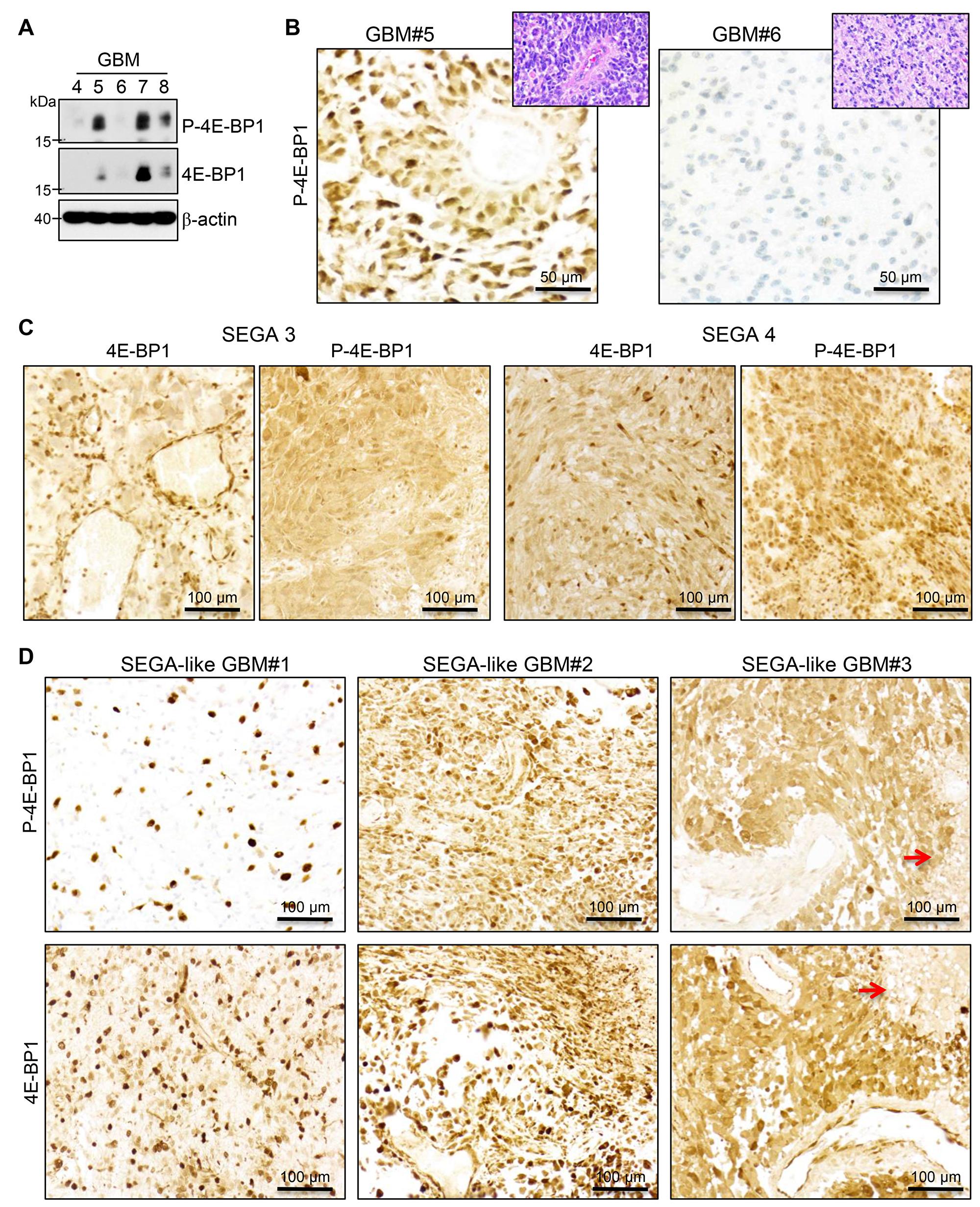 MTOR activation in SEGA and SEGA-like glioblastoma.