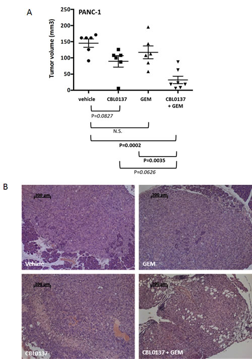 Effect of CBL0137 and gemcitabine on orthotopic PANC1 pancreatic tumor growth in nude mice.
