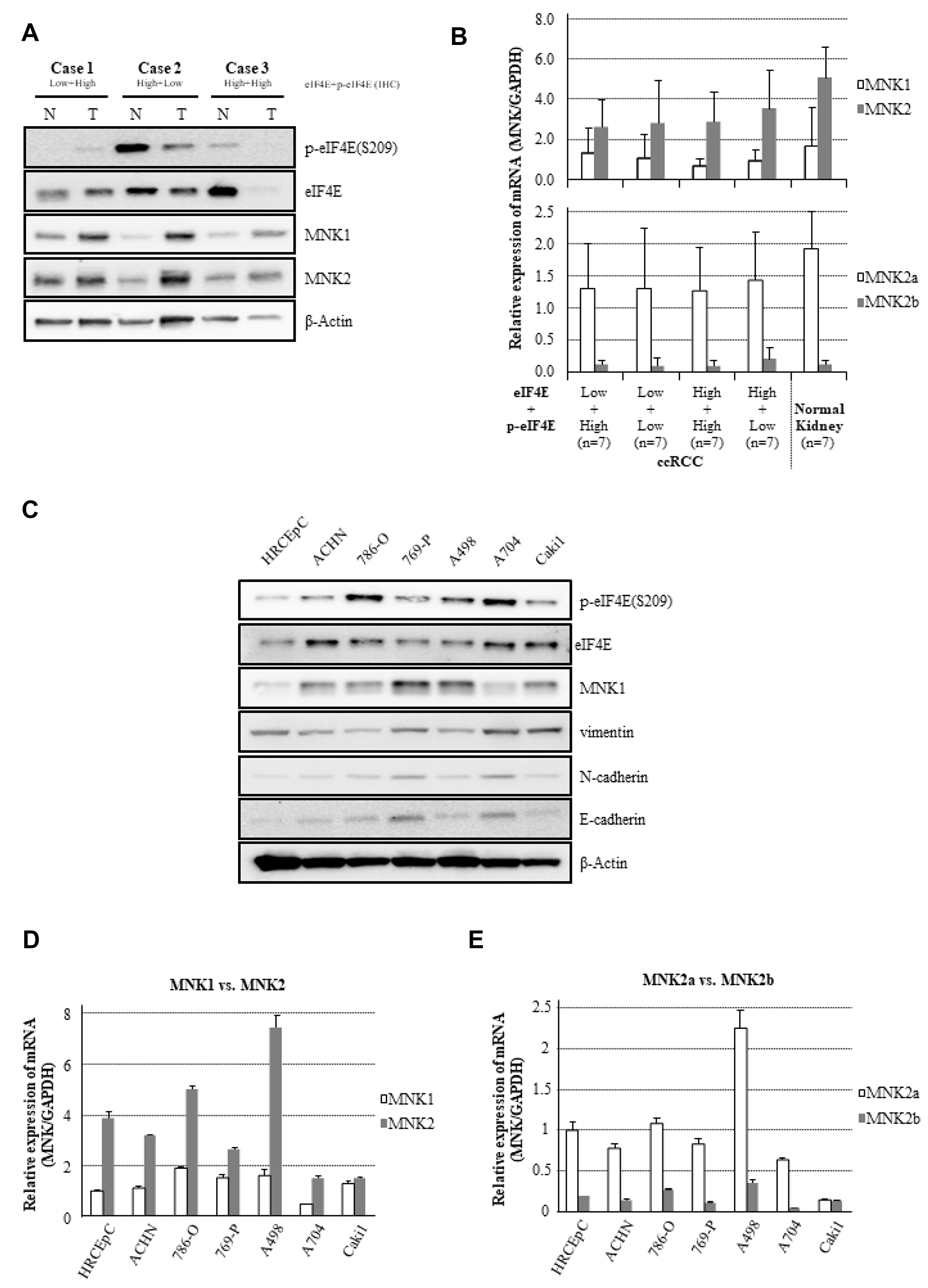 Expressional differences in MNK/eIF4E signaling and molecular markers on EMT.