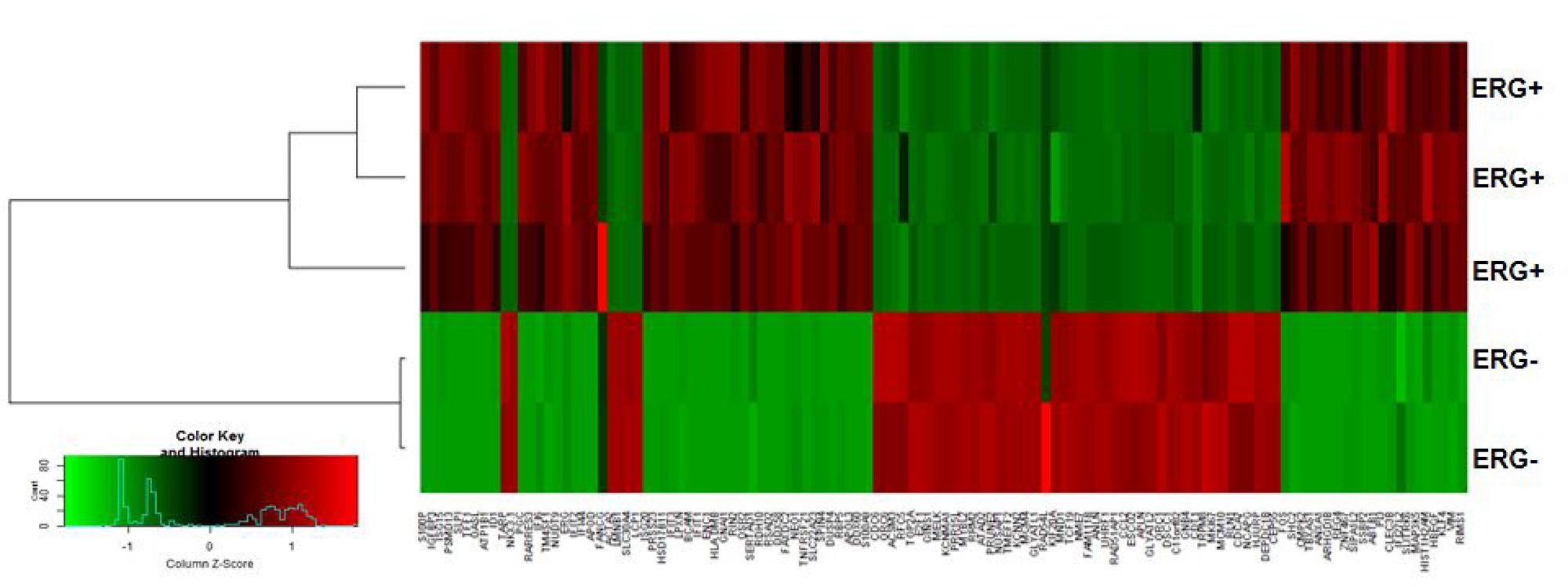 ERG-associated transcripts in CaP cells.