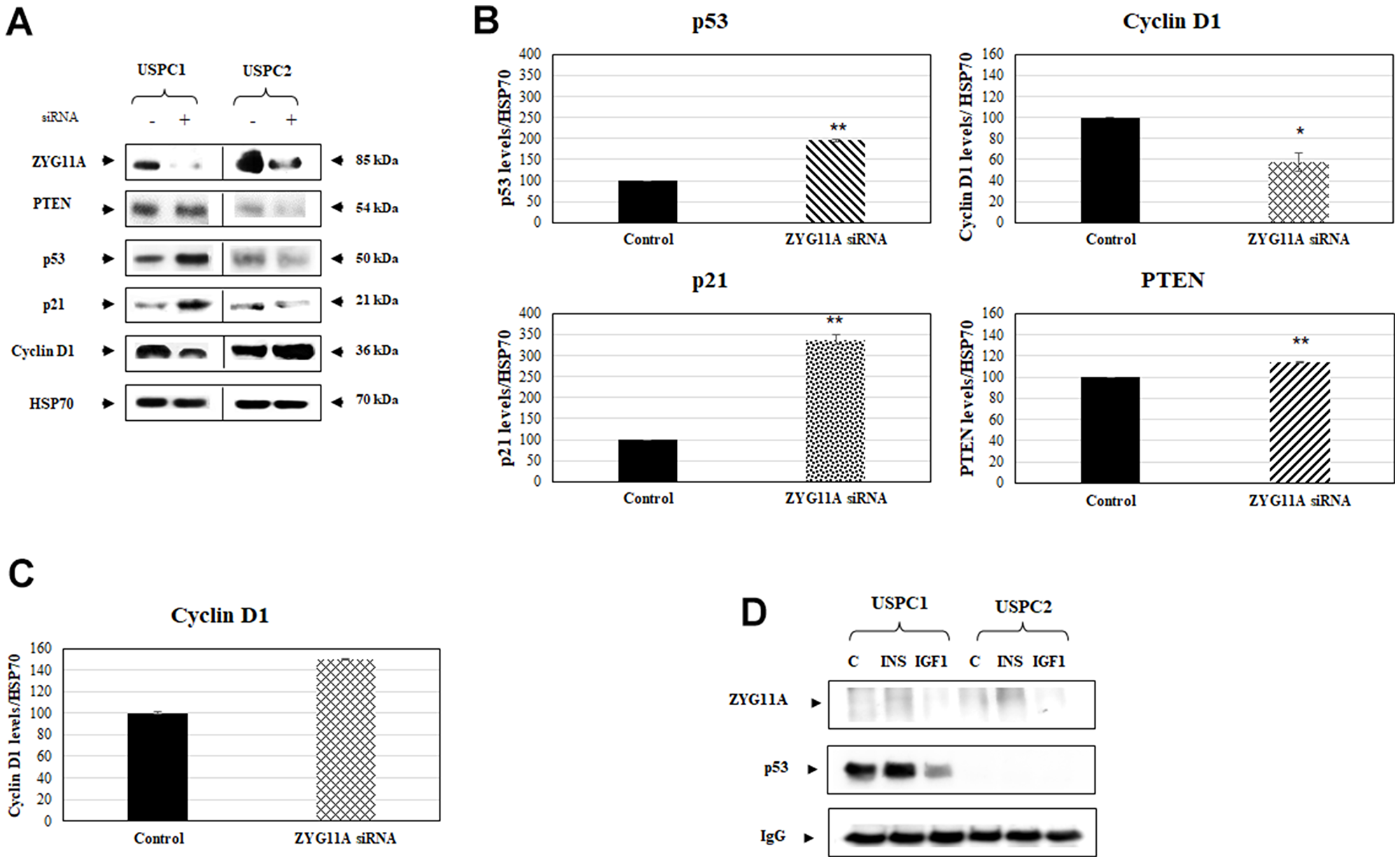 Effect of ZYG11A knockdown on cell cycle regulated proteins.