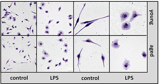 Morphology of macrophages from aged and young mice in vitro.