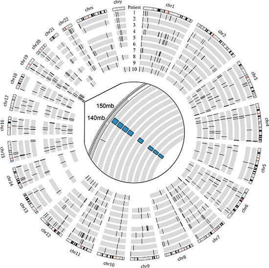 Genomic deletions in FL-HCC across 10 patients.