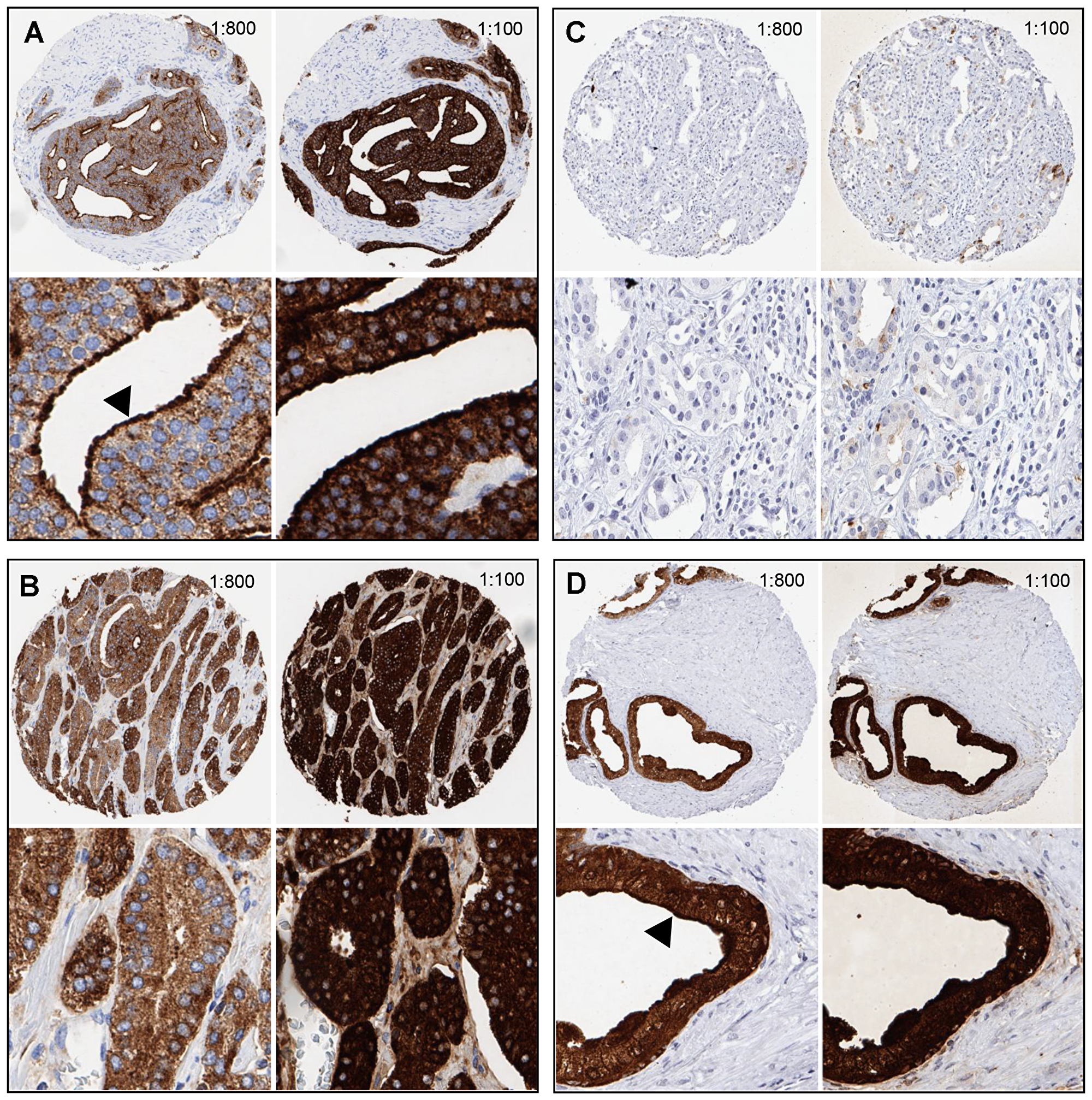 Examples of PSA immunostaining at two different antibody dilutions (1:100, 1:800) in prostate tissues.