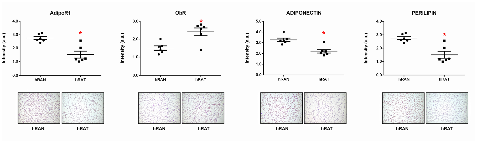ObR, AdipoR1, adiponectin and perilipin 1 expression in the different adipose tissues.