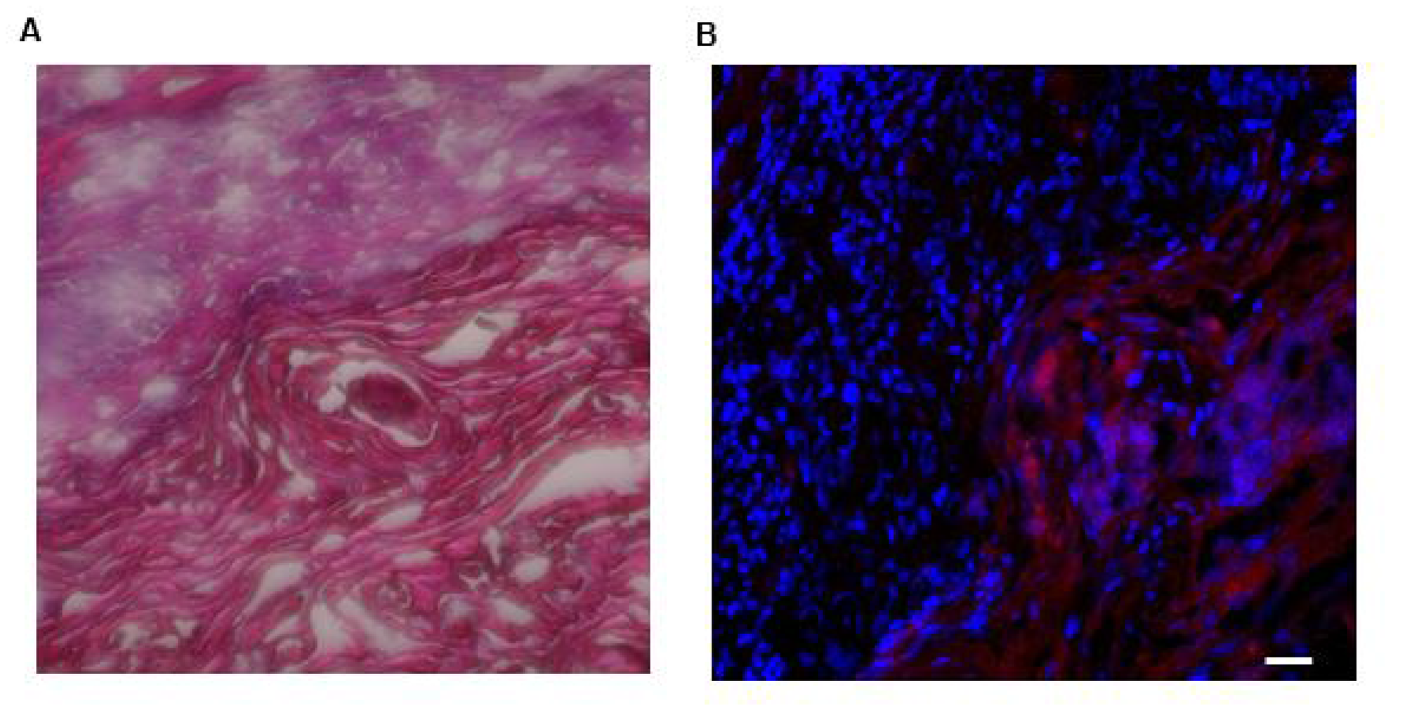Photomicrographs of H&E staining of and LLY13-biotin/SA-Cy5.5 uptake into excised HSC3 implanted tongue tissues (20X).