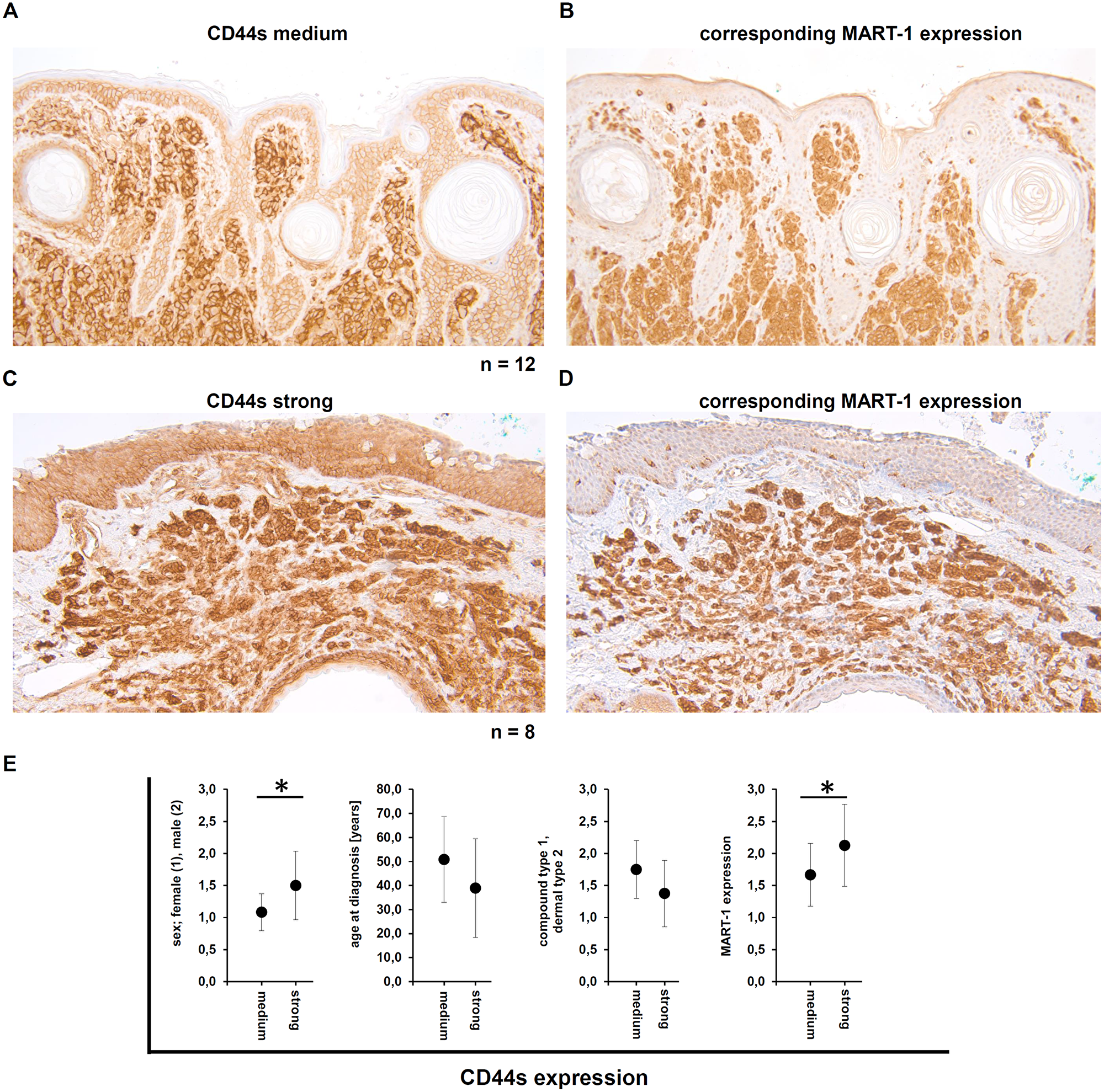Demonstration of the CD44s and the corresponding MART-1 expression in human melanocytic nevi.
