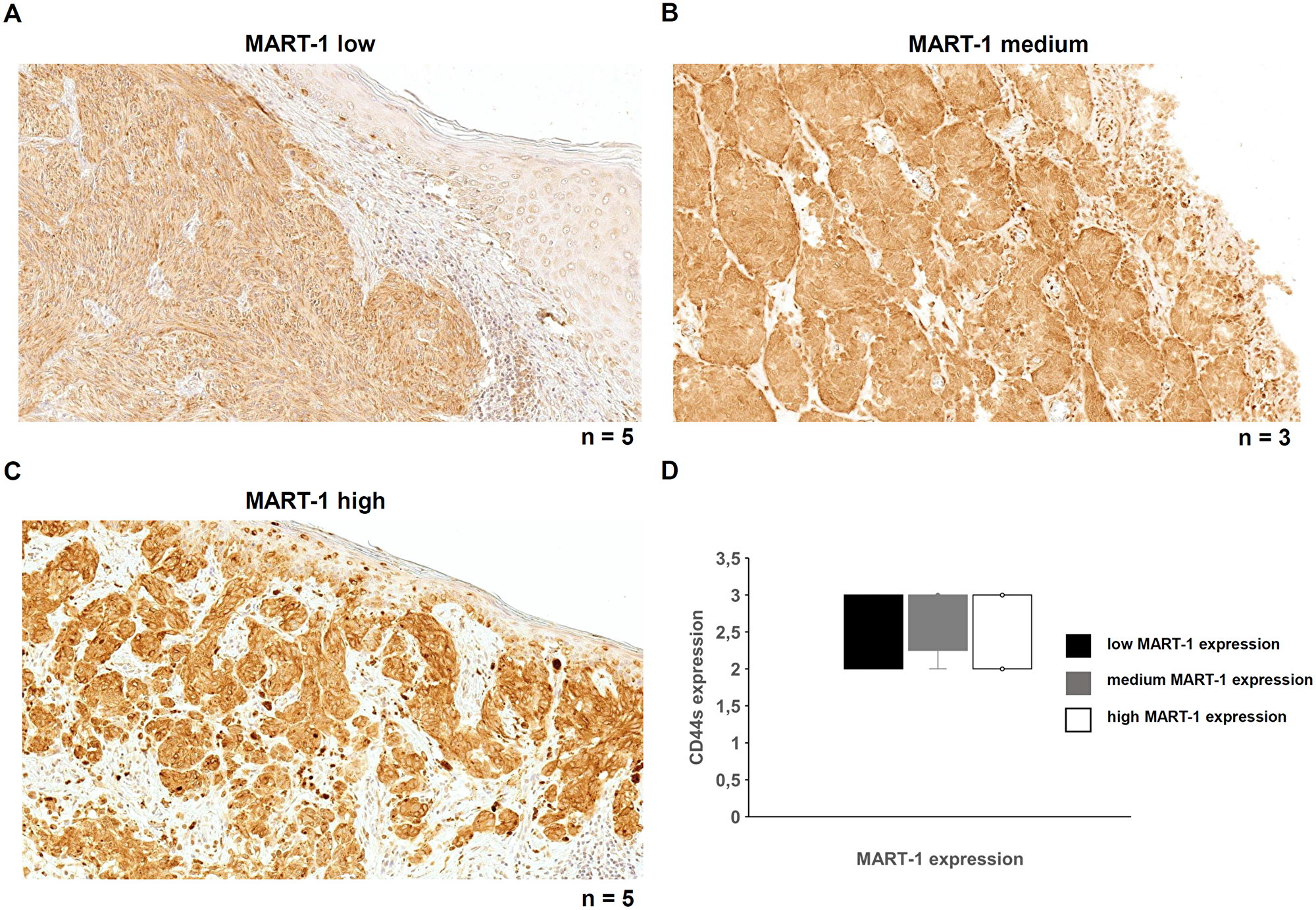 MART-1 expression and its correlation with CD44s expression in malignant melanoma.