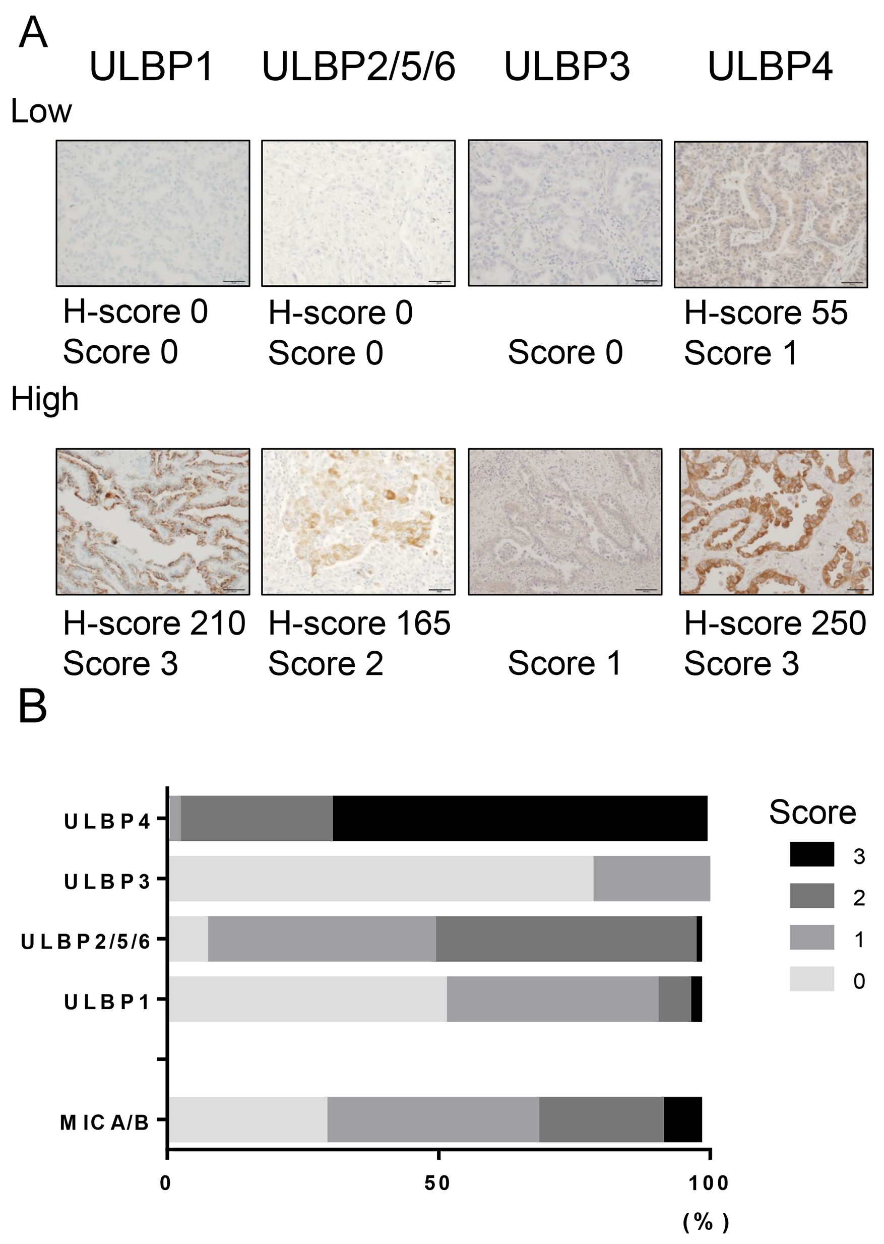 NKG2D ligand expression in NSCLC tissues.