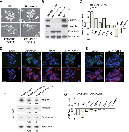 CRIPTO expression is positively associated with mesenchymal characteristics in cultures of PCa cells.