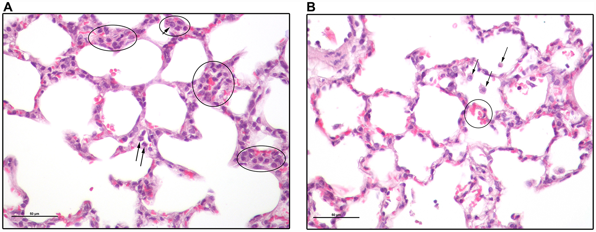 Lung sections of a 2CLP+NCs rat 4 days following the 2CLP-operation.