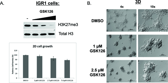 Catalytic inhibition of endogenous EZH2 Y641N (GOF) alters 3D-morphology of IGR1 melanoma cells.