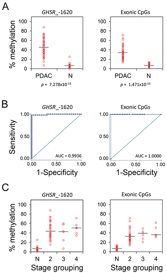 GHSR methylation degree, ROC curve analysis and methylation percentages across different stages in a validation set of PDAC and normal pancreas tissue specimens from healthy individuals.