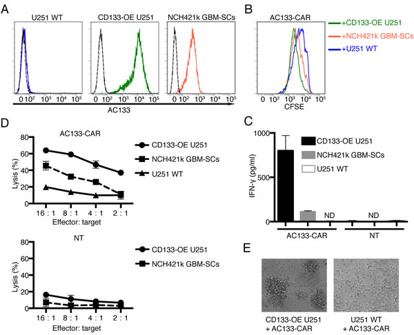 AC133-CAR T cells specifically recognize and kill AC133-positive glioma cells