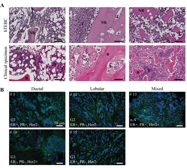 Tumor development in the hTEBC is representative of clinical bone metastases from breast carcinoma patients.