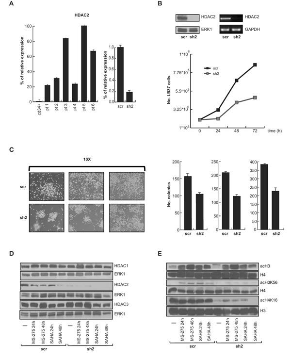 Selective HDAC2 silencing in U937 cells.