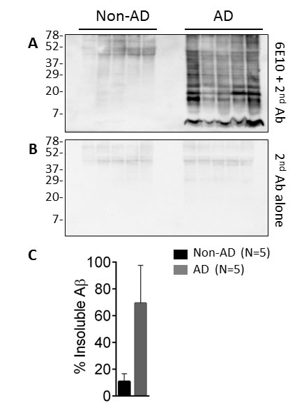 Levels of insoluble endogenous Aβ from AD and non-AD brains.