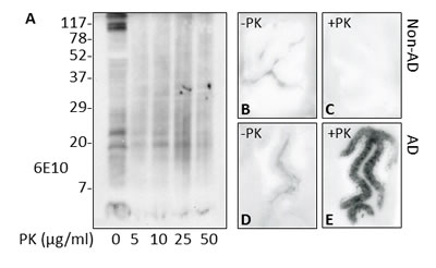 PK resistance of Aβ in AD brains.