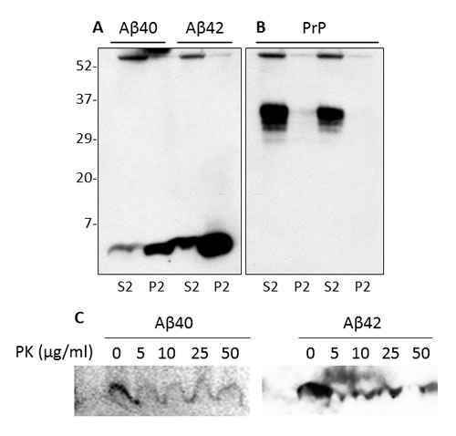 Effect of brain homogenate on detergent-insolubility and PK-resistance of synthetic Aβ.