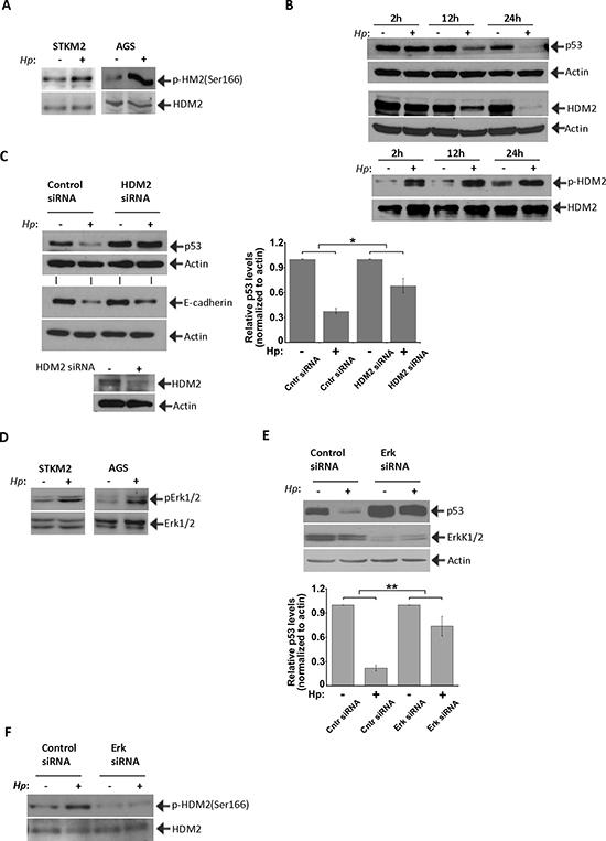 HDM2 regulate p53 in H. pylori-infected cells.