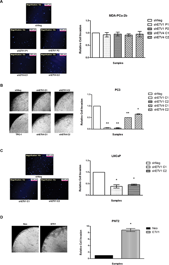 In vitro evaluation of the impact of ETV1 or ETV4 silencing in cell invasion.