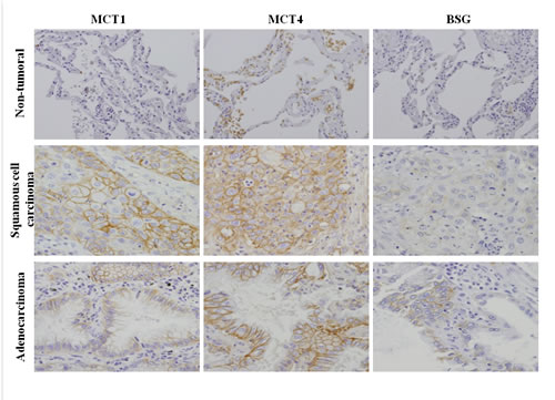 Immunohistochemical expression of the monocarboxylate transporters, MCT1 and MCT4, and their chaperone protein BSG in lung cancer samples.