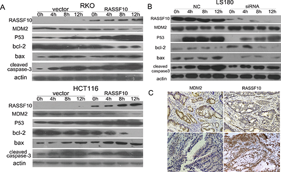 RASSF10 effects on P53 signaling.