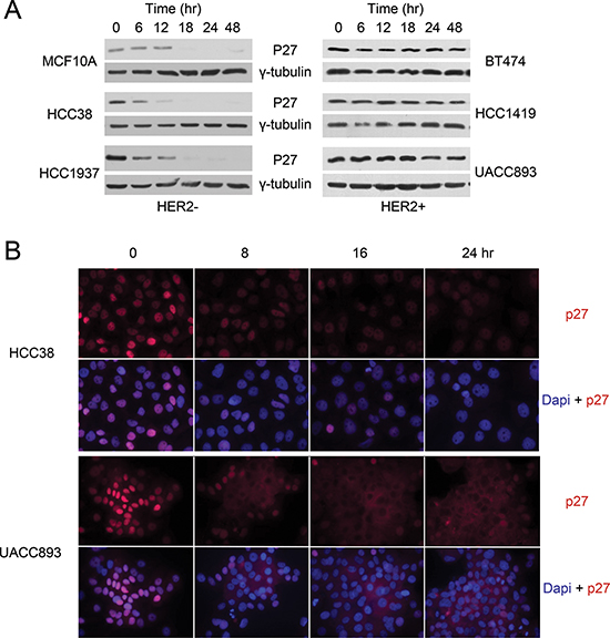 P27 mis-localizes to the cytoplasm in HER2+ breast cancer cells.
