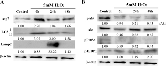 Effects of brief H2O2 treatment on autophagy signaling pathway in HEI-OC1 cells.
