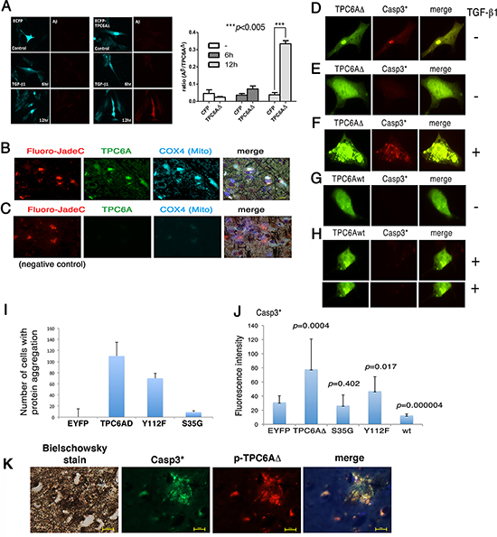 TGF-β1 induces TPC6AΔ aggregation for leading to caspase activation.