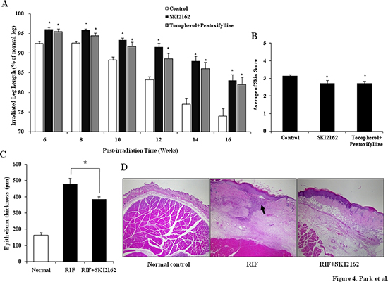 SKI2162 inhibited radiation-induced fibrosis (RIF) in a mouse model.