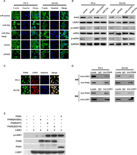 Mechanism by which miR-23a suppresses migration and invasion of prostate cancer cells.