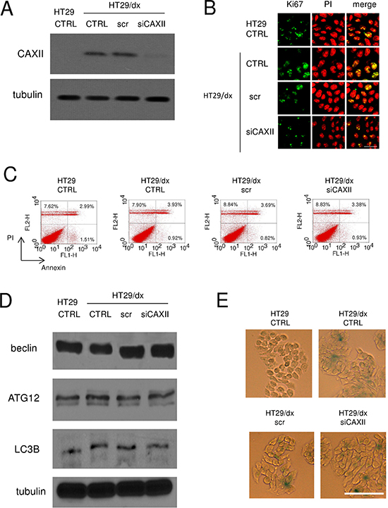 Depletion of CAXII does not affect proliferation and survival of chemoresistant cells.