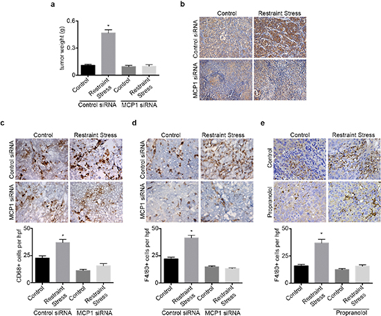 hMCP1 siRNA-DOPC nanoparticles abrogates restraint stress induced increase in tumor growth and macrophage recruitment.