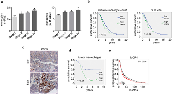 Elevated peripheral blood monocytes and tumoral macrophages correlate with poor outcome in ovarian cancer patients.