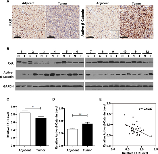 FXR expression was frequently reduced in human Hepatocarcinoma, correlating with elevated β-Catenin activation.