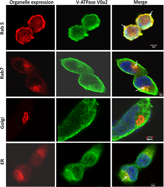Sub-cellular localization of V-ATPase-V0a2 shows endosomal association in ovarian cancer cells.